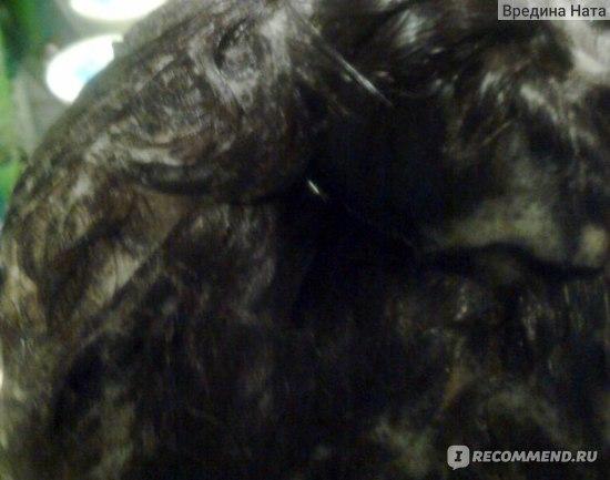 Лечение при перхоти и выпадении волос у женщин