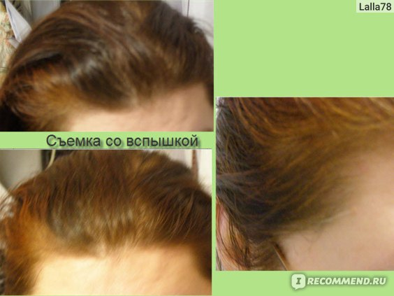 Дегтярное средства для ускорения роста волос домашние
