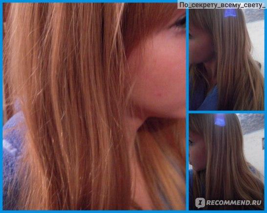 Волосы выпадают пучками в руках