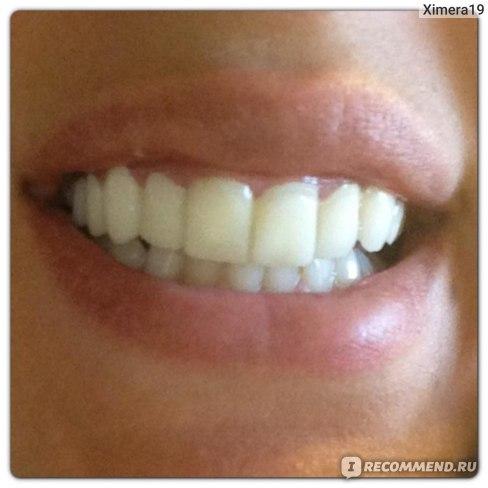 лечу зубы по знакомству