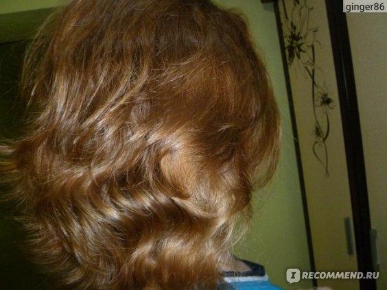 Выпадение волос - Симптомы и лечение народными