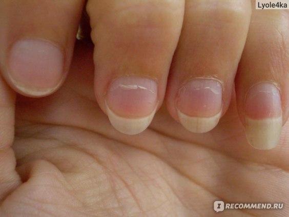 Если у мужчины круглые ногти