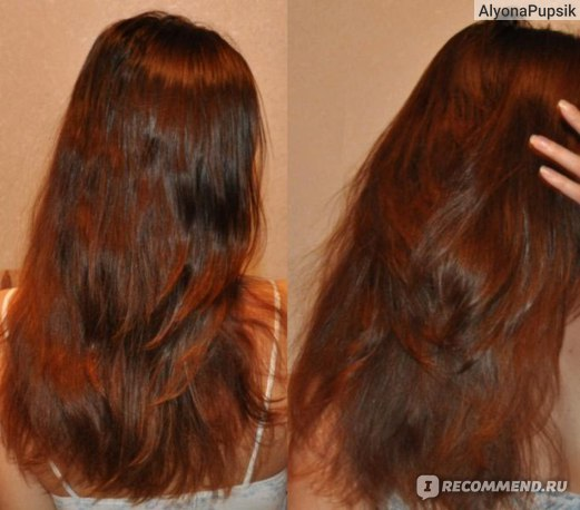 Пересадка волос в россии самая низкая цена