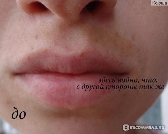 пигментное пятно на губе как избавиться