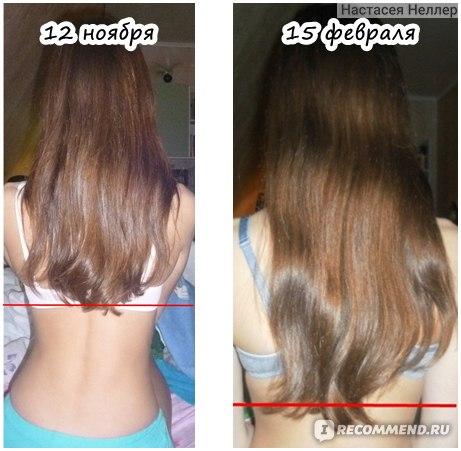 Быстро отрастить волосы в домашних условиях витамины