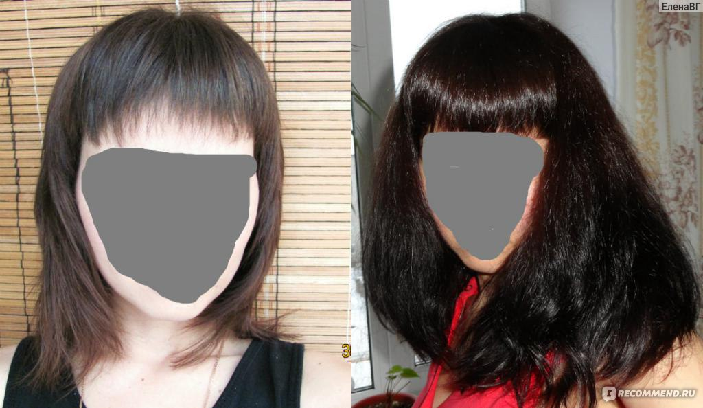 После маски вылезают волосы