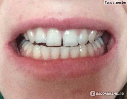 magic white отбеливание зубов цена москва
