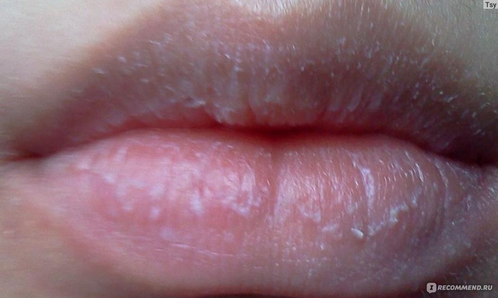 белый налет неприятный запах изо рта