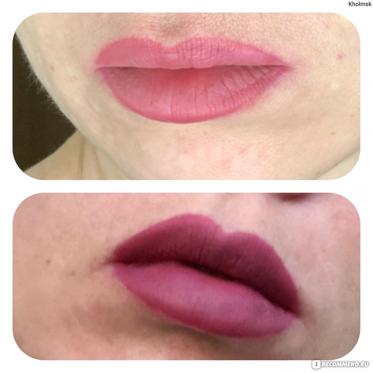 Филлер для губ Juvederm Ultra Smile - «Как сделать красивые