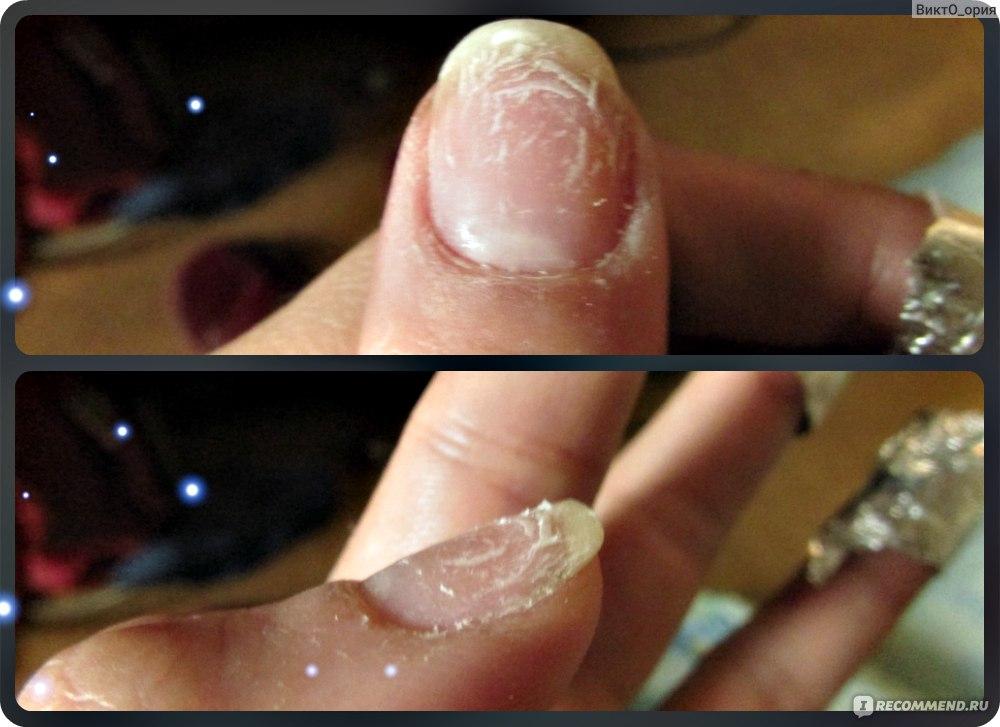 Как снять ногти нарощенные шеллаком в домашних условиях