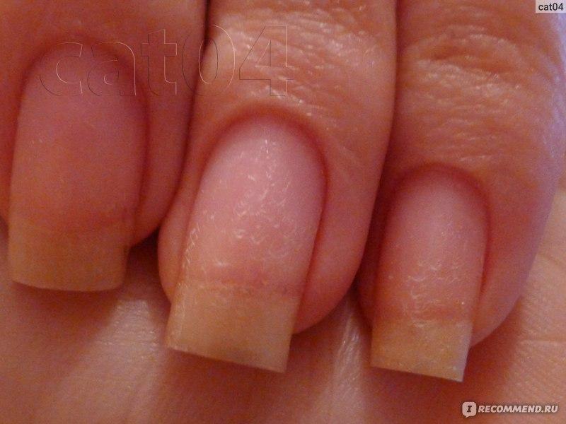 Сначала ногти выглядят прекрасно, ровные, прямые, форма хорошая.