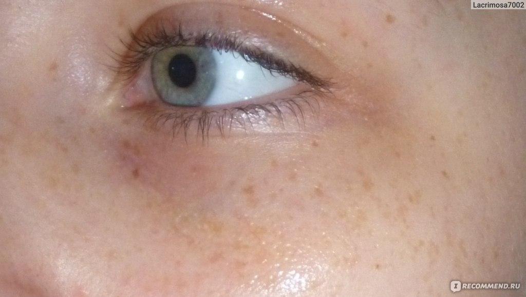 сколько проходит аллергия на бровях