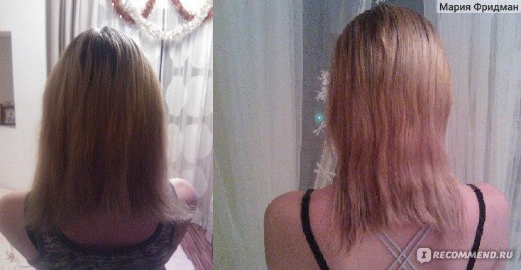 Нарушение кровообращения головного мозга выпадение волос