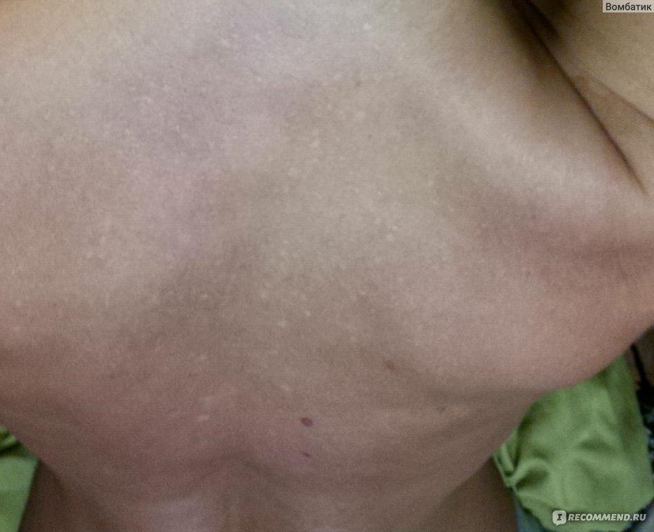 Accutane Breast Tenderness