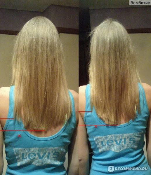 Какие масла улучшают рост волос