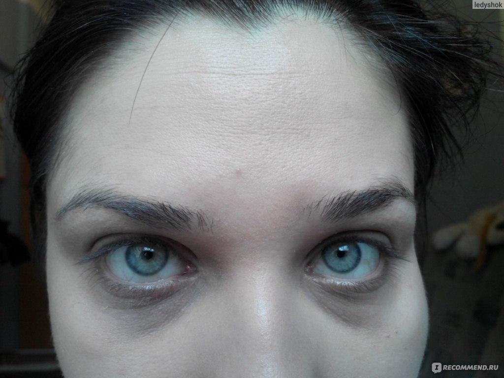Почему у человека темные круги под глазами 11