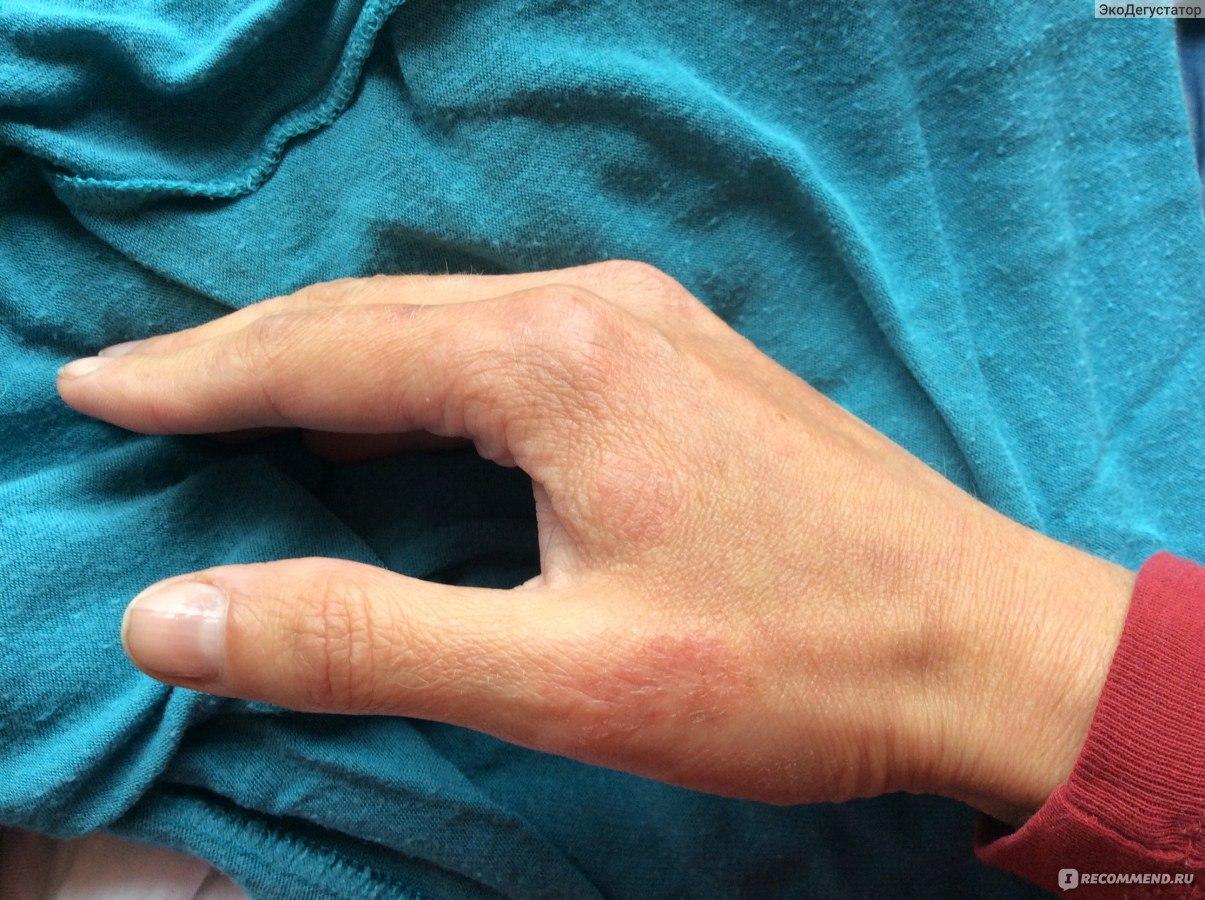Аллергия на солнце. Летняя неприятность