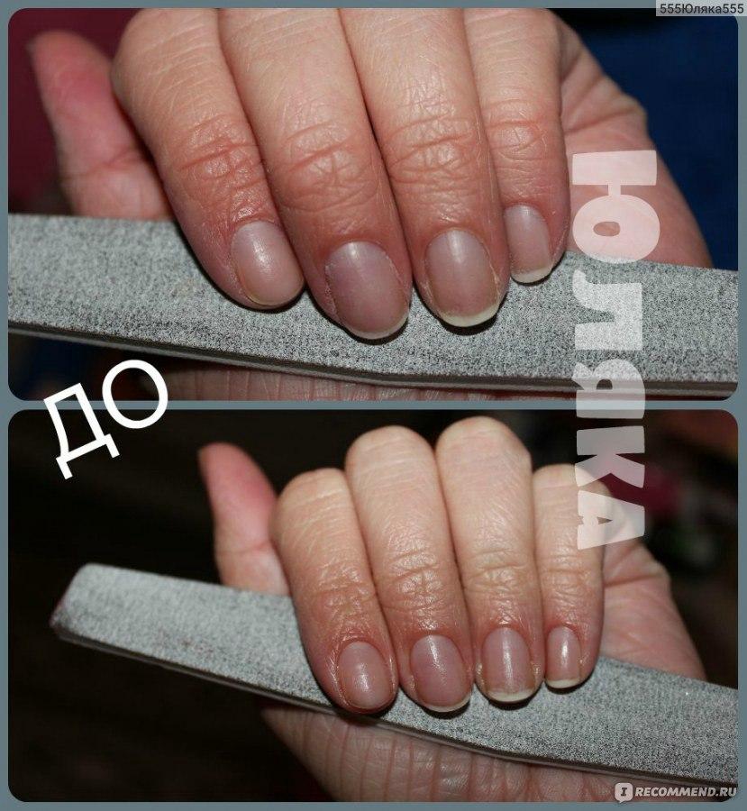 Как отрастить ногти в домашних условиях за 7 дней 334