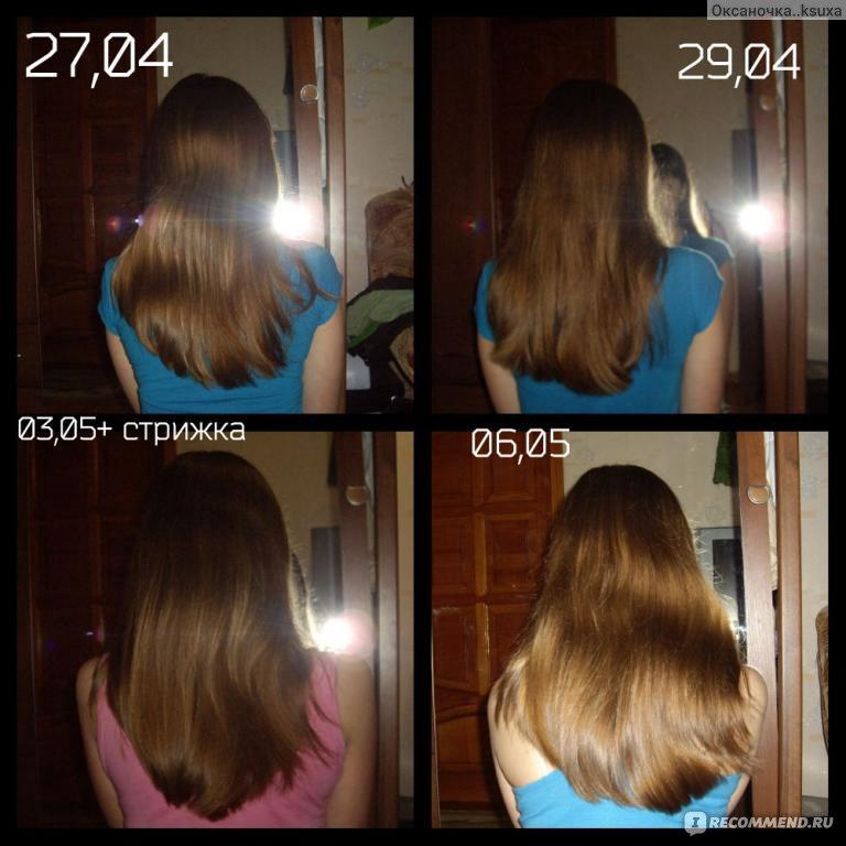Быстрый рост волос в домашних условиях маски