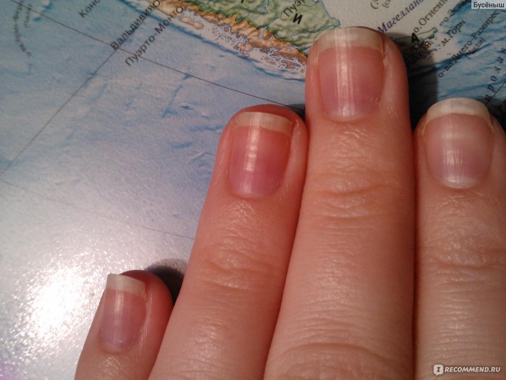 Если от пилочки слоятся ногти