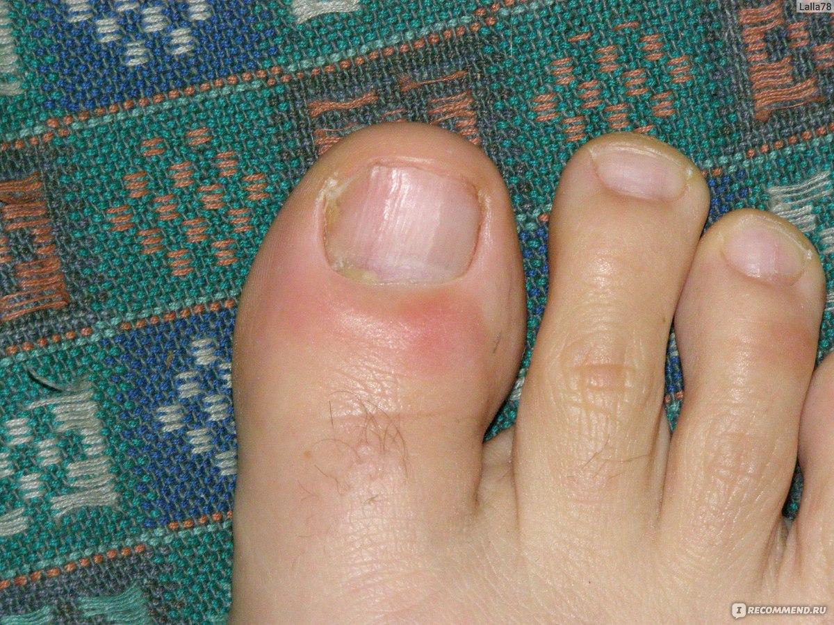 Лечение нагноение ногтя в домашних условиях
