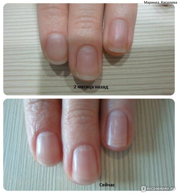 Укрепляющий лак для ногтей бельведер