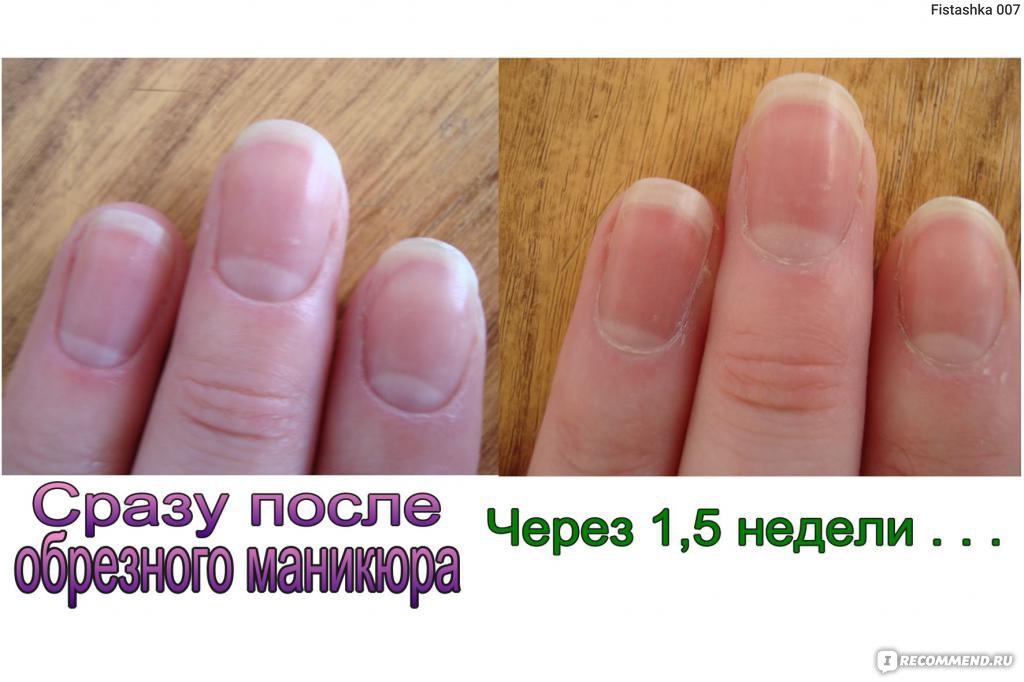 Как сделать необрезной маникюр в 521