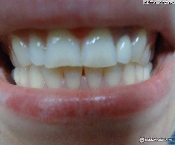 гель для отбеливания зубов состав