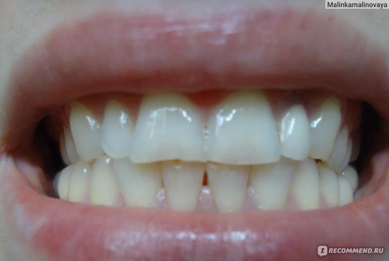 гель для отбеливания зубов алиэкспресс