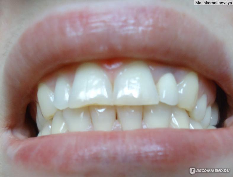 гель для отбеливания зубов global white отзывы