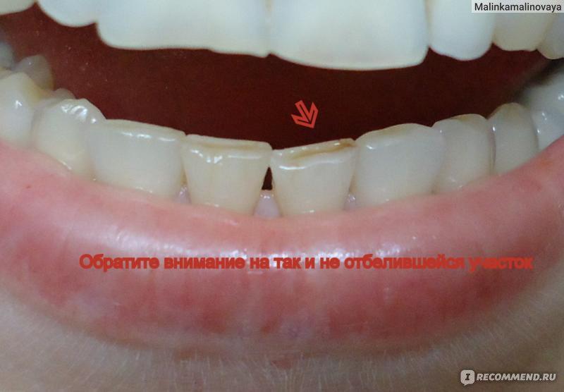 кап для отбеливания зубов