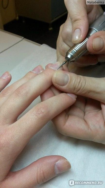 аденоид в носу у ребенка симптомы фото