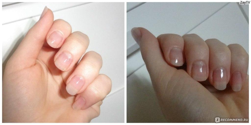 отзывы бодифлекс фото до и после