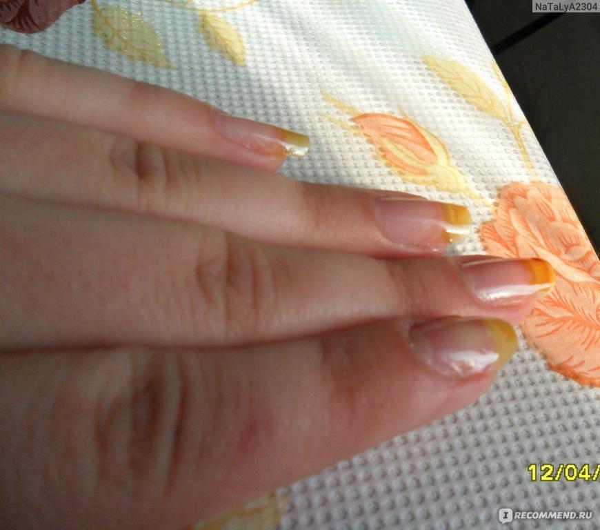 Лечение ногтей йодом на руках