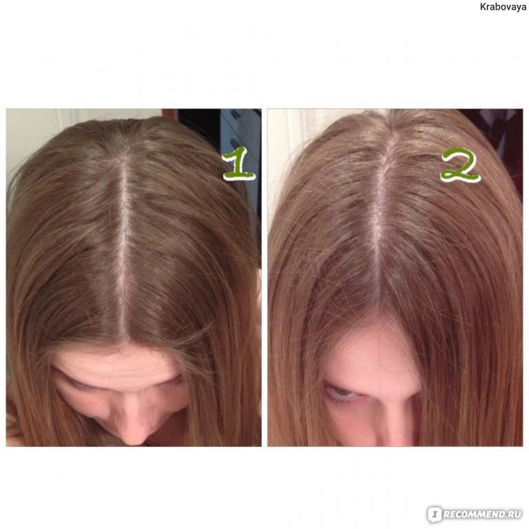 Лечение выпадения волос у подростков девочек