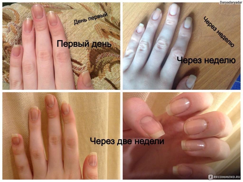 Чем ускорить рост ногтей в домашних условиях 487