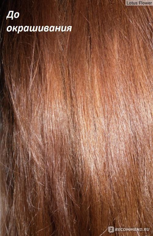 витамины для волос внутримышечный укол