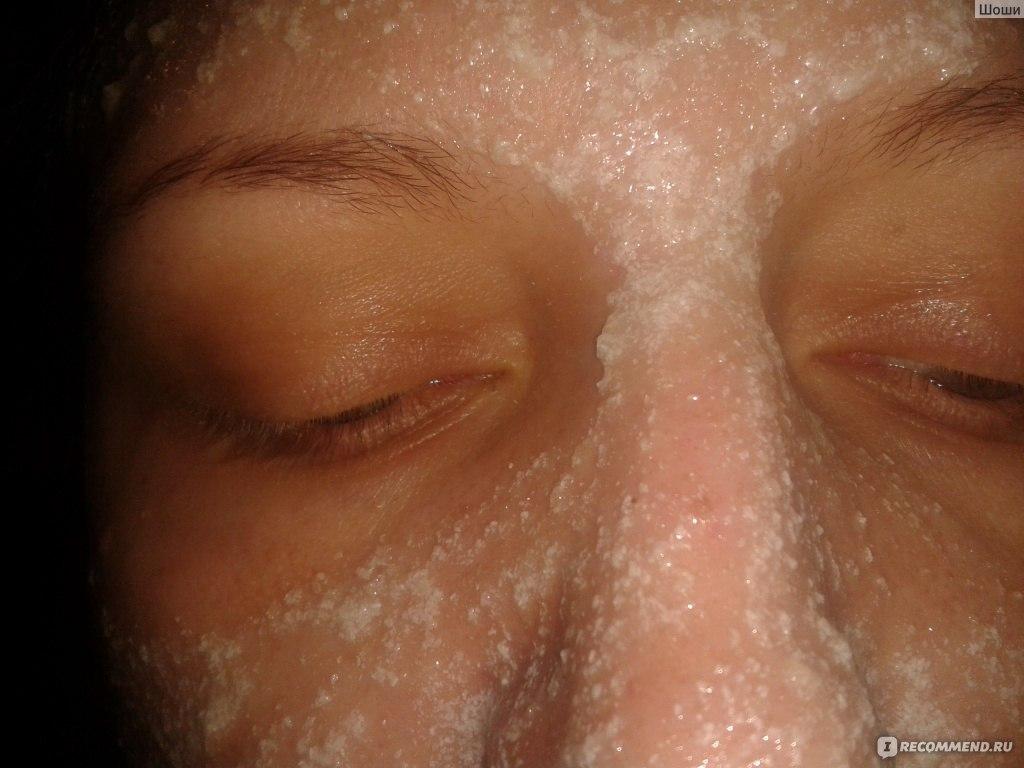 ацетилсалициловая кислота с медом для лица