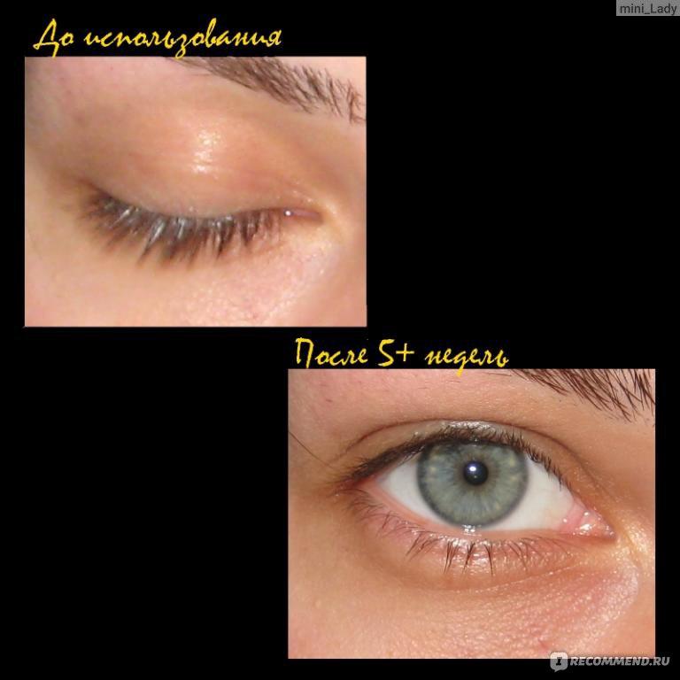 Почему нужно ухаживать за кожей вокруг глаз