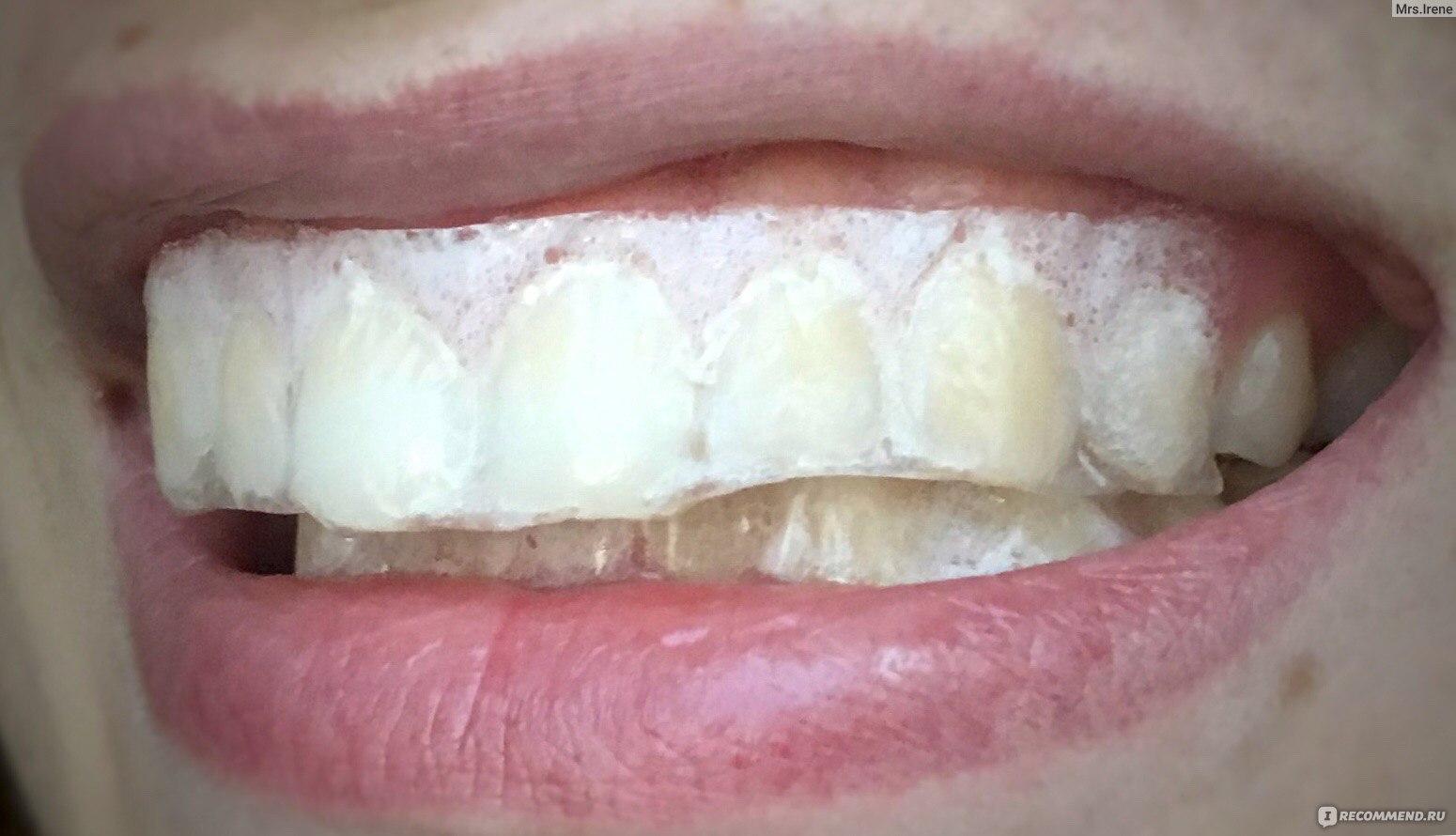 сайте отбеливание зубов перекисью фото забуду, что именно