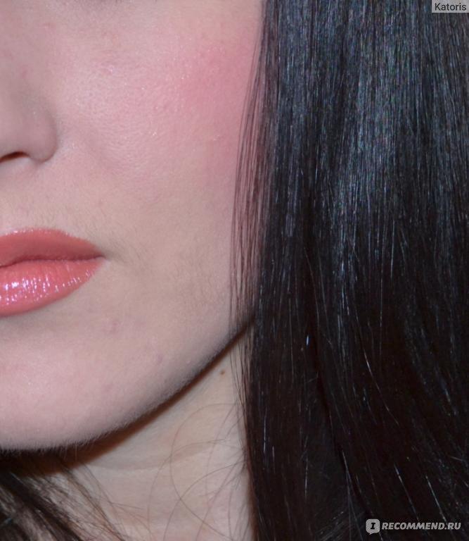 У ребенка покраснели губы Покраснение контура губ