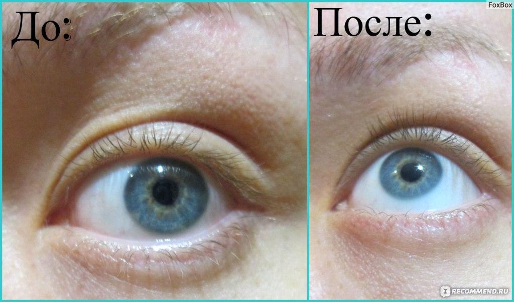 Как сделать белок глаз белыми