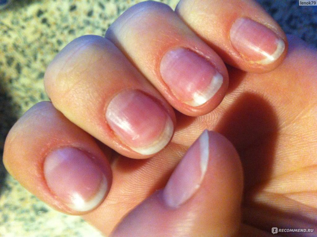 Какие лекарства принимать при грибке на ногте