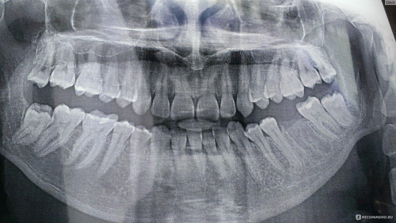 у меня страшные зубы не хочу