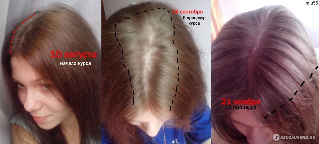 Мезотерапия волос спортивная