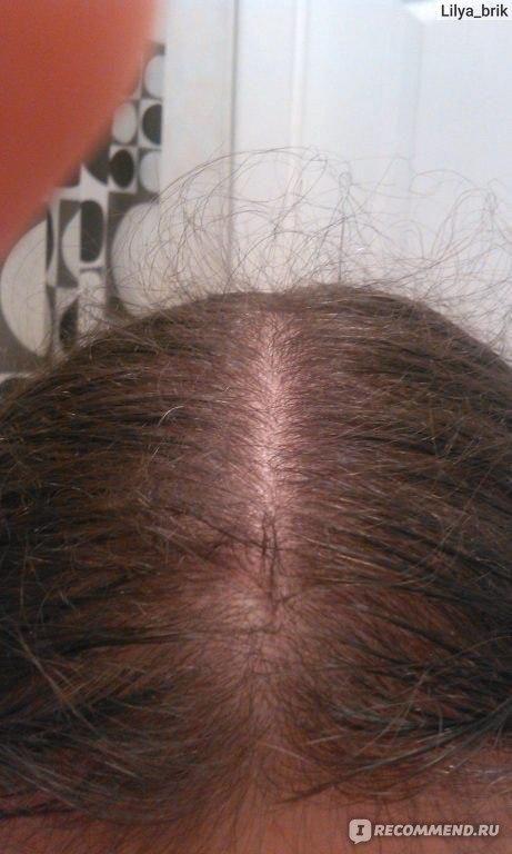 Сильно выпадают волосы 20 лет