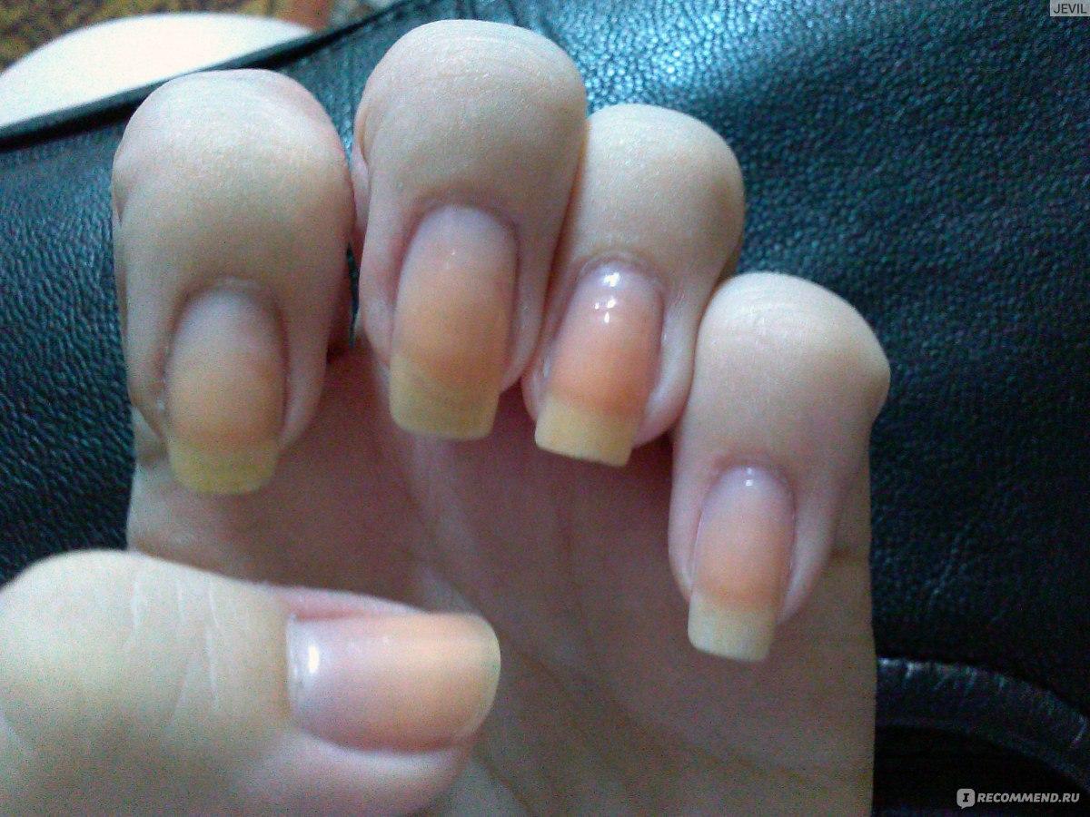 Поперечные бороздки на ногтях рук причины и лечение фото