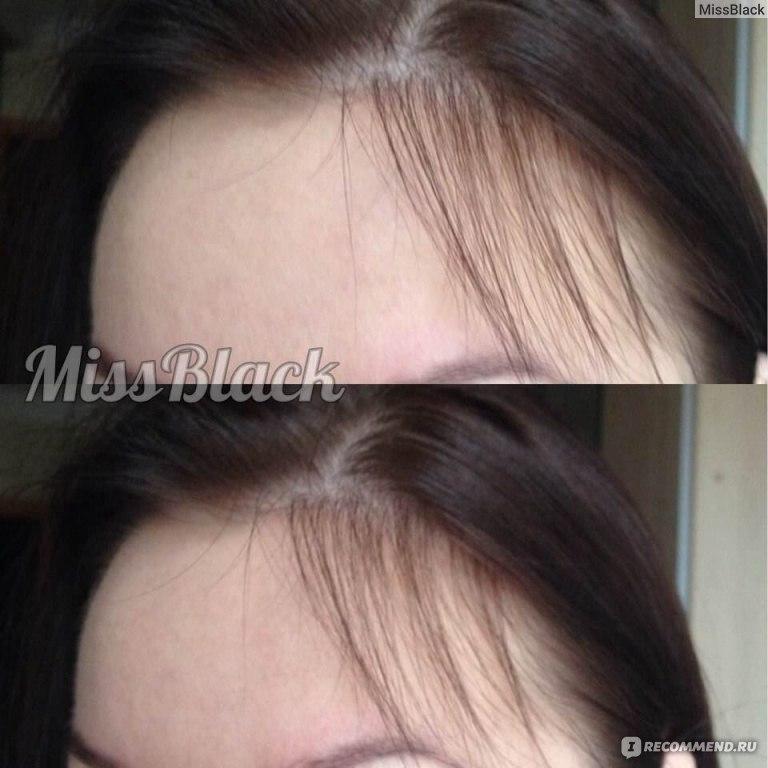 Исправить линию роста волос