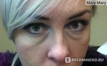 За и против лазерной коррекции глаз