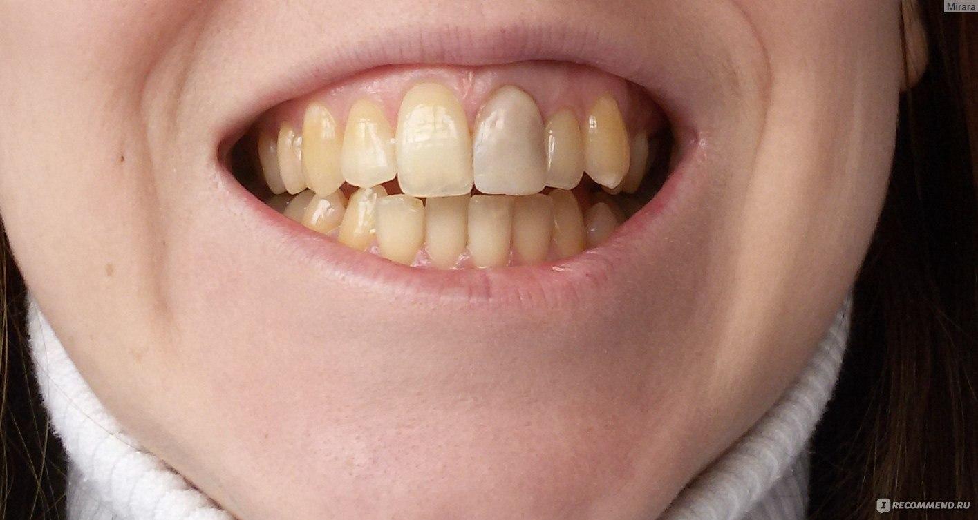 отбеливание портит зубы
